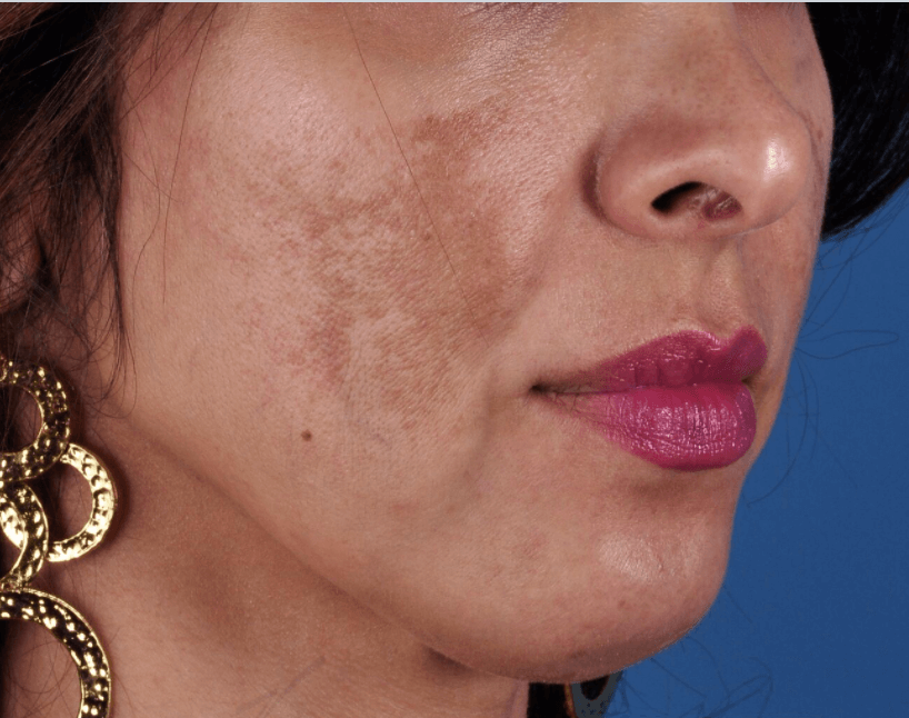 Melasma & Rosacea Results Before Combined Procedure