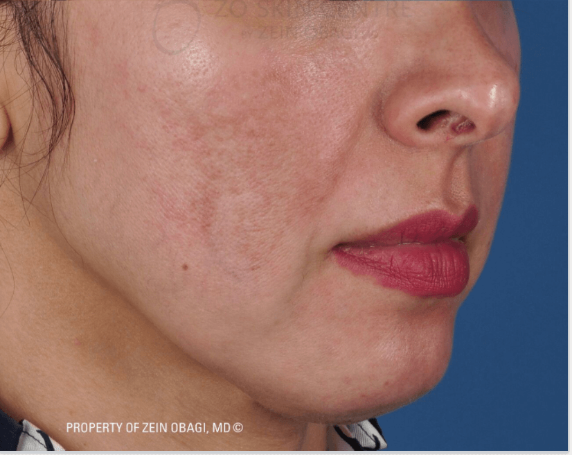 Melasma & Rosacea Results After Combined Procedure