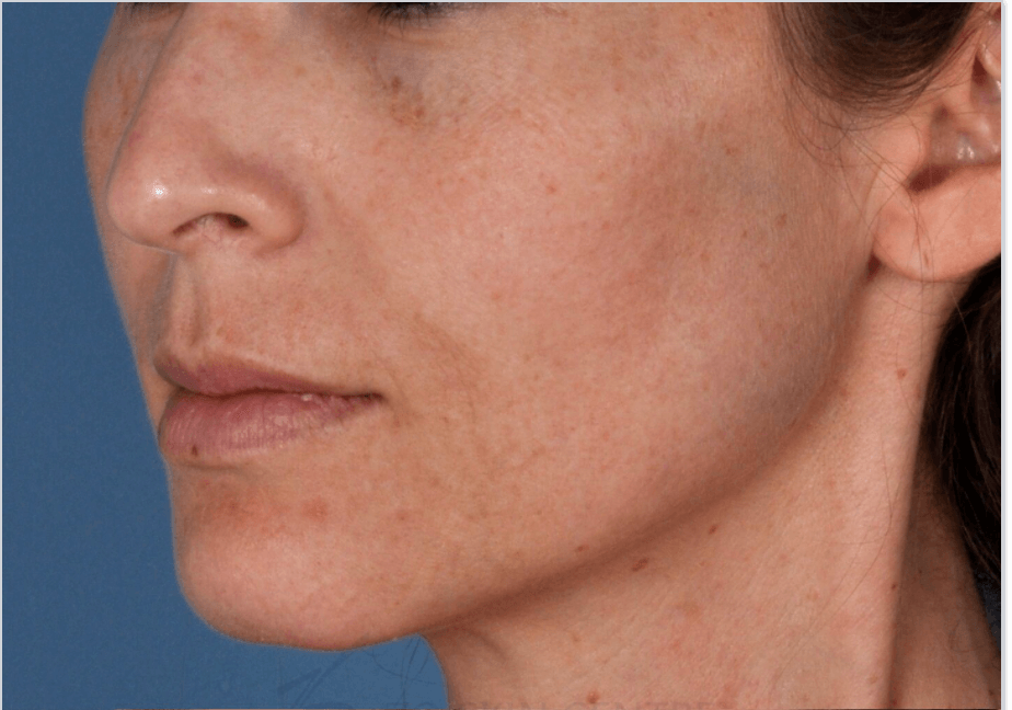 Anti-Aging and Sun Damage Before