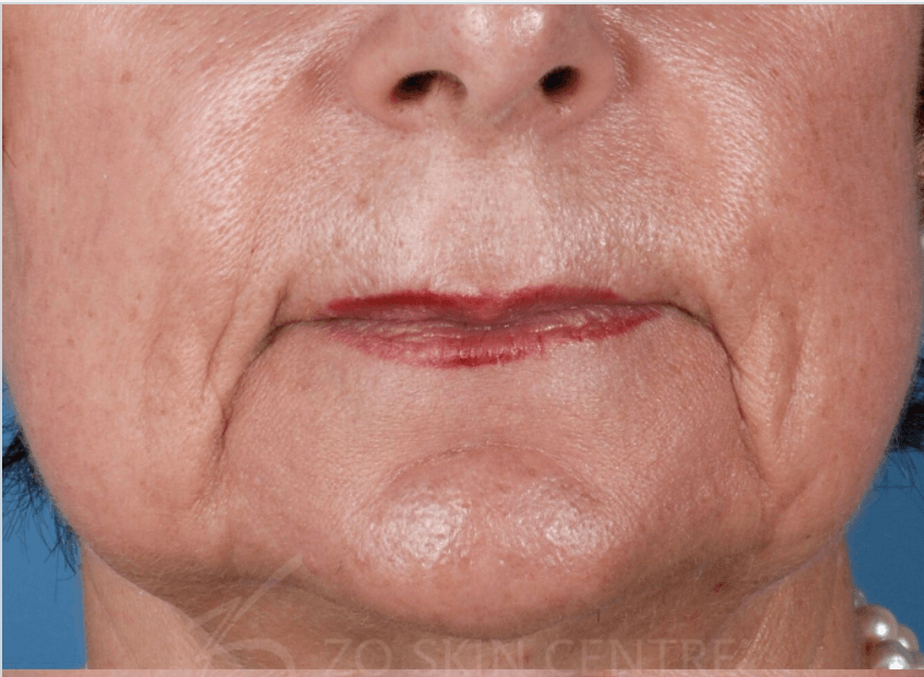 Marionette Lines Before Sculptra®