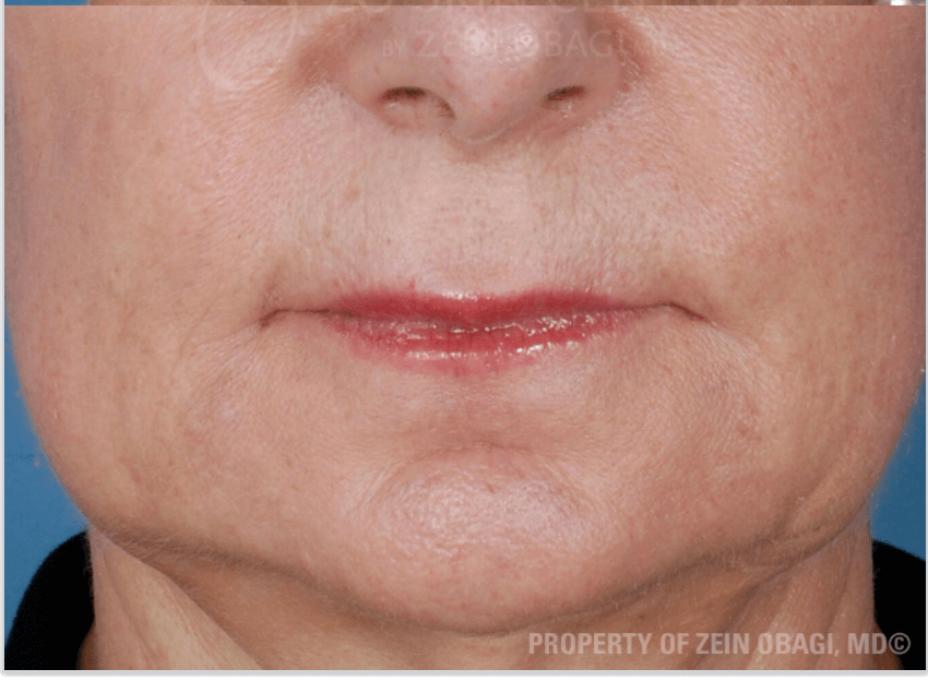 Marionette Lines After Sculptra® Injections