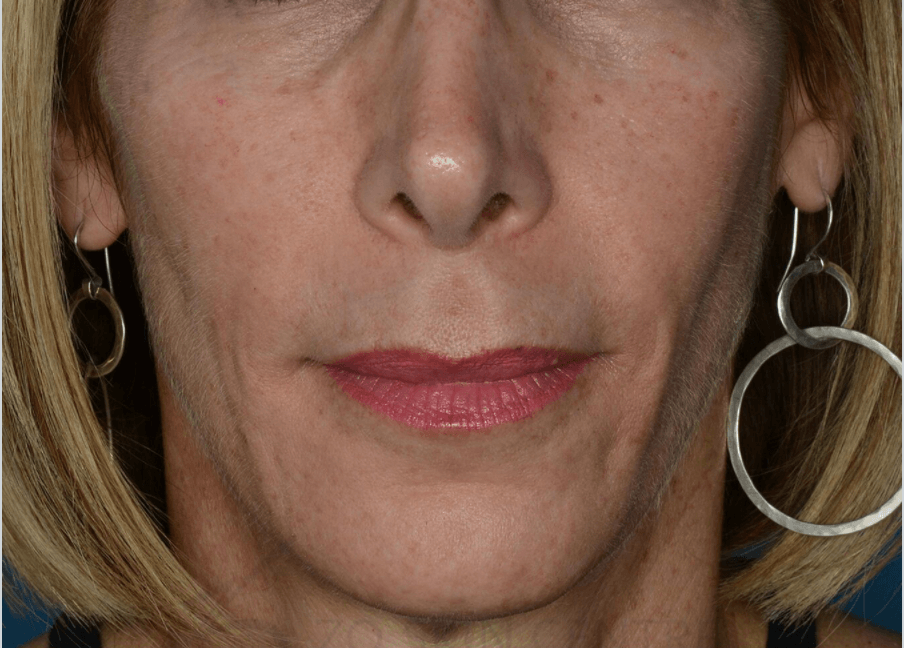 Anti-Aging and Sun Damage Before ZO Skin Health Products