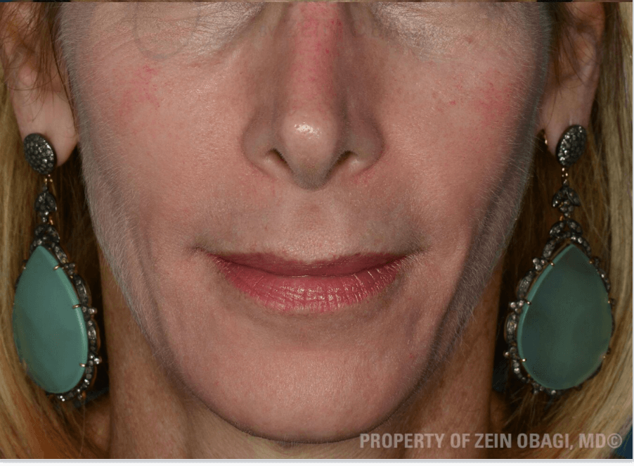 Anti-Aging and Sun Damage After ZO Skin Health Products