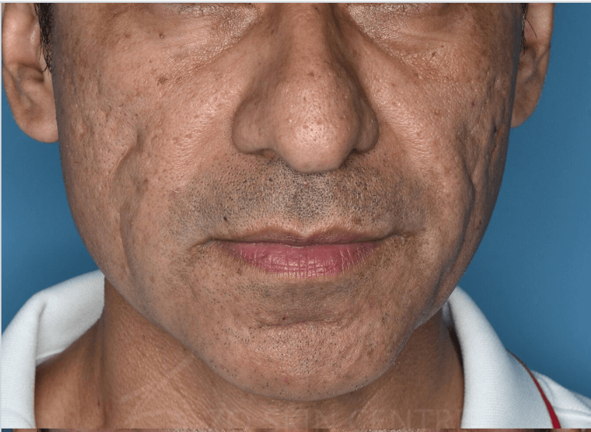 Acne Scarring & Pigmentation Before Combined Procedure