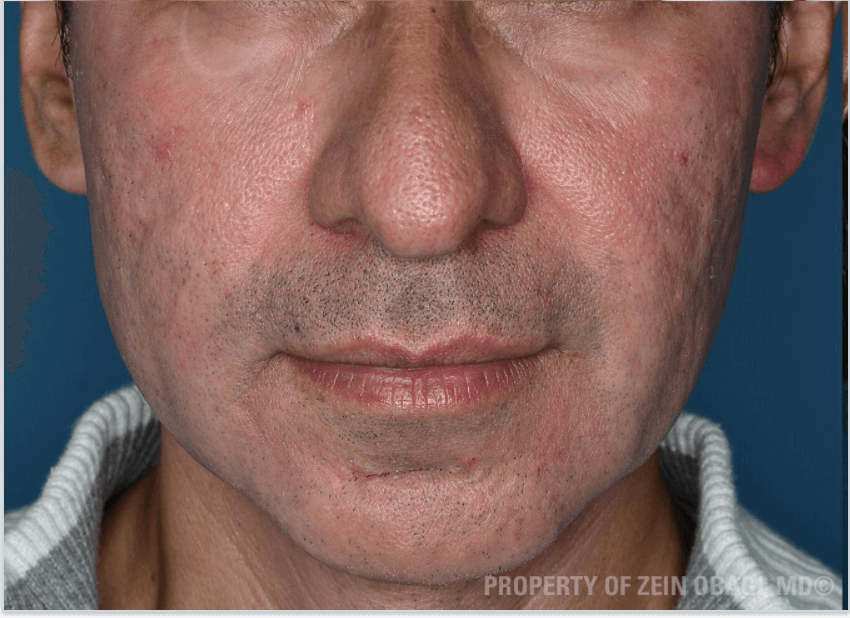 Acne Scarring & Pigmentation After Combined Procedure