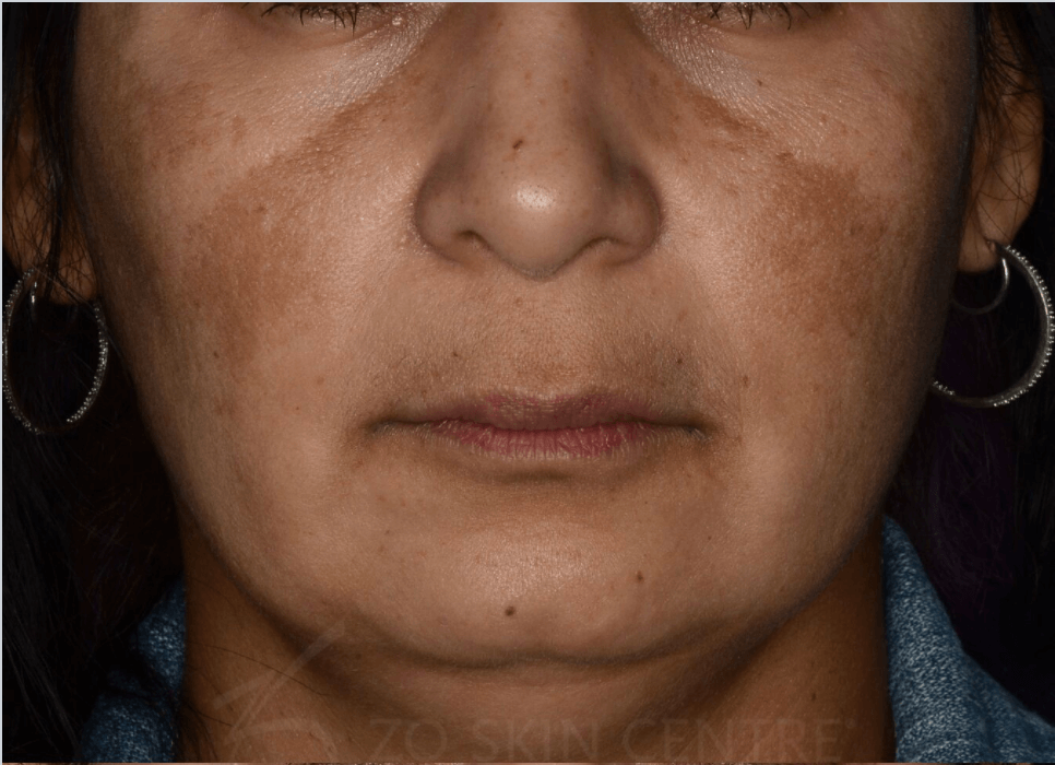 Melasma & Rosacea Results Before Customized Treatment