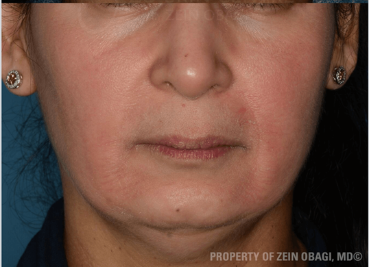 Melasma & Rosacea Results After Customized Treatment