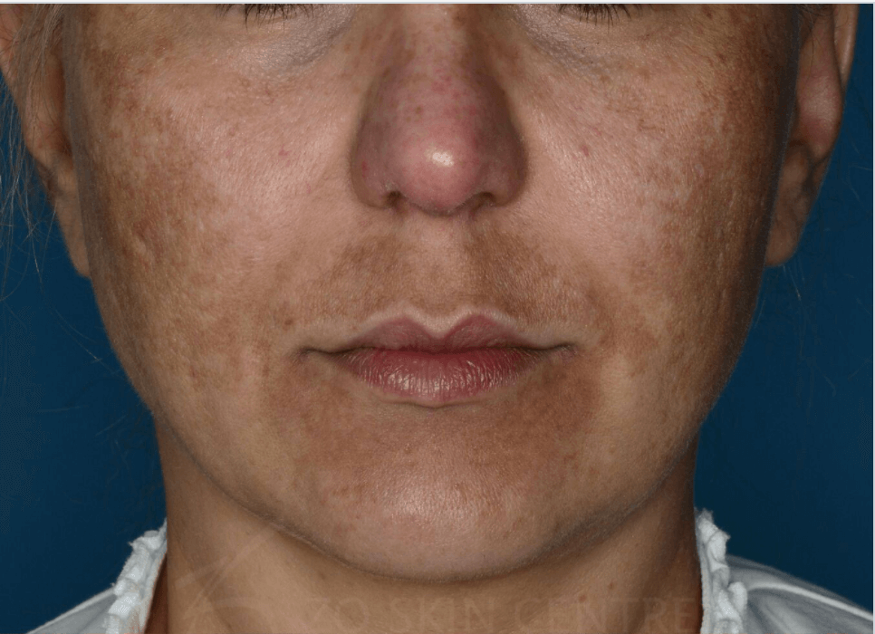 Melasma Results Before