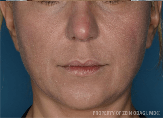 Melasma Results After