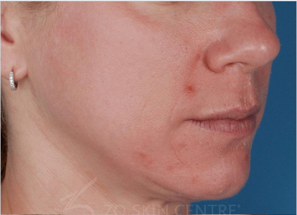 Roasea with Enlarged Pores Before Treatment
