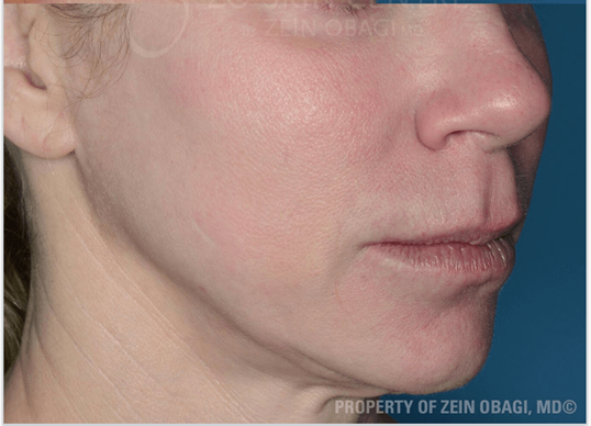 Roasea with Enlarged Pores After Treatment