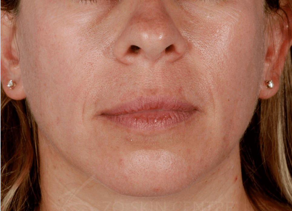 Rosacea Before Customized Treatment