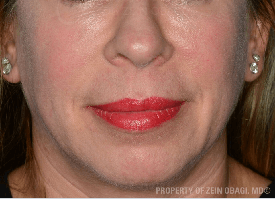 Rosacea After Customized Treatment