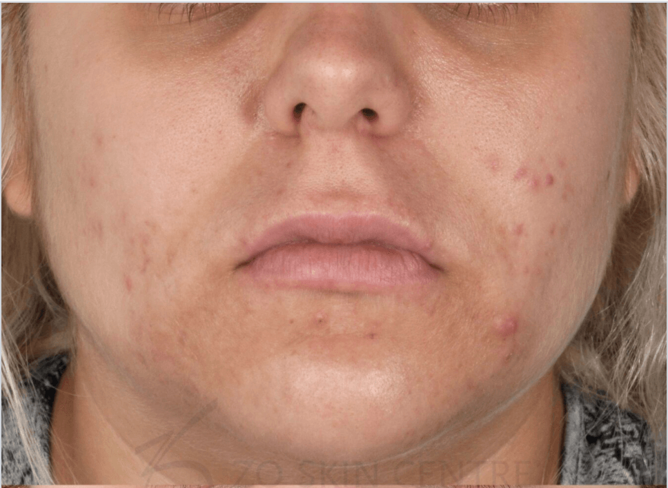 Acne & PIH Results Before Customized Treatment