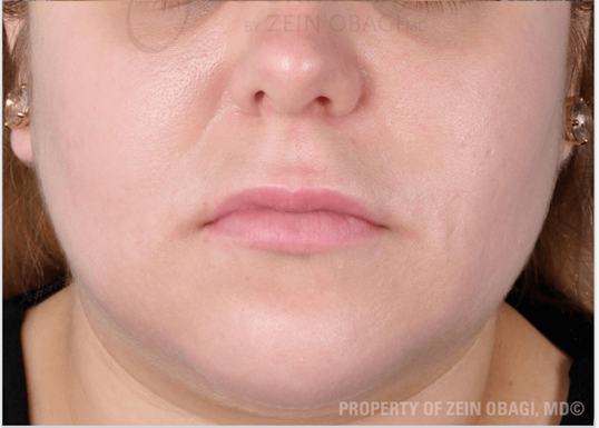 Acne & PIH Results After Customized Treatment