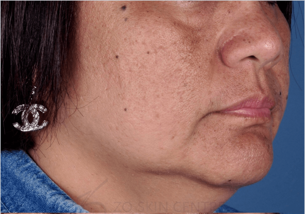 Sun Damage, Freckles and PIH Before Custom ZO® Peel