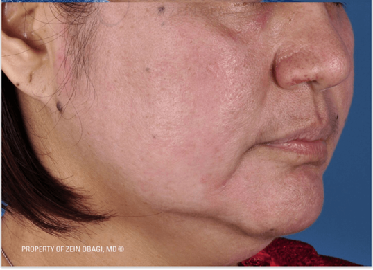 Sun Damage, Freckles and PIH After ZO® 3-Step Peel™