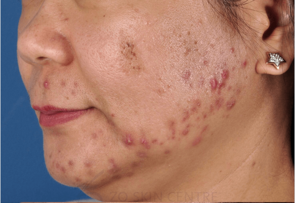 Acne, Rough Texture, Scars Before ZO® Skin Health Creams