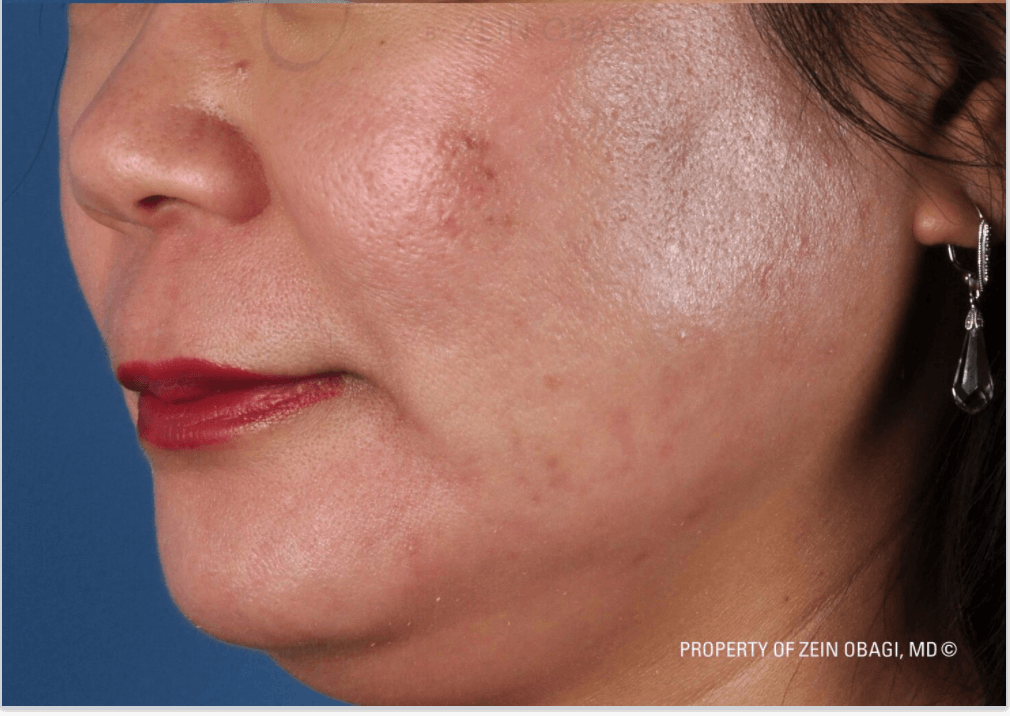 Acne, Rough Texture, Scars After ZO® Skin Health Creams