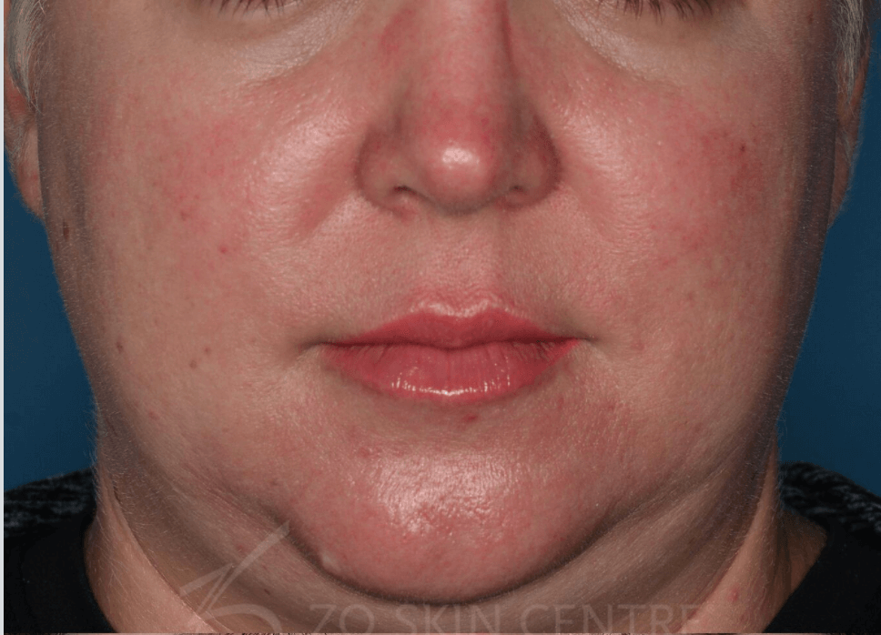 Rosacea Results Before ZO® Skin Health Creams