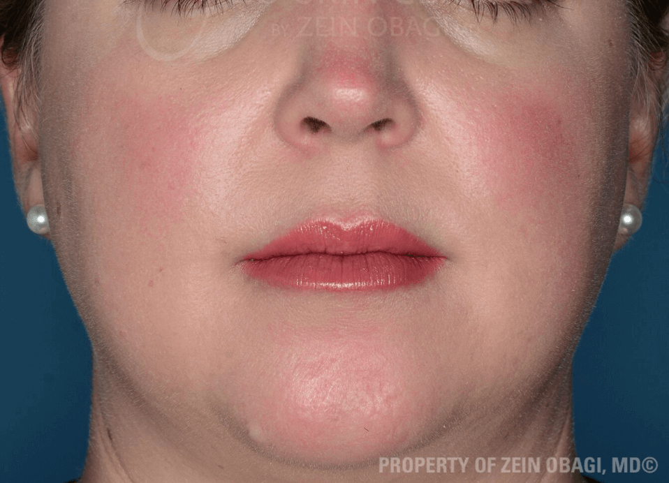 Rosacea Results After ZO® Skin Health Creams