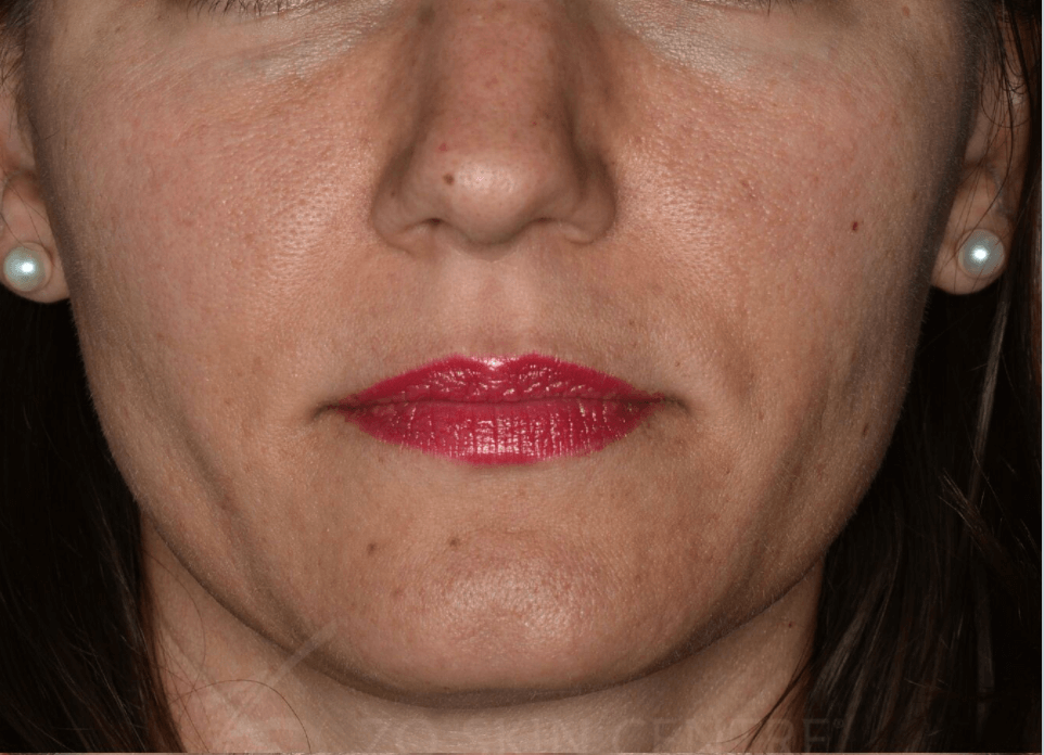 Rosacea & Enlarged Pores Before ZO® Skin Health Creams