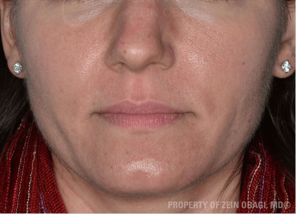 Rosacea & Enlarged Pores After ZO® Skin Health Creams