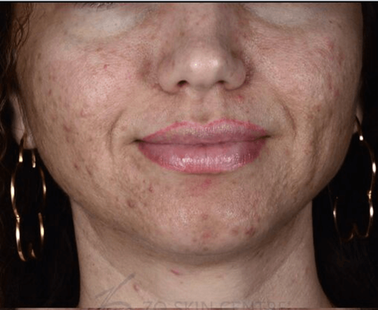 PIH, Cystic Acne & Scarring Before Customized Treatment