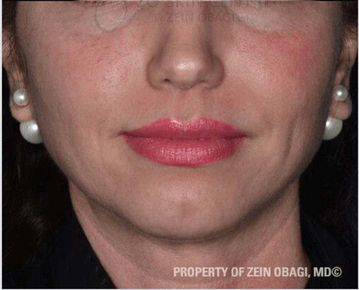 PIH, Cystic Acne & Scarring After Customized Treatment