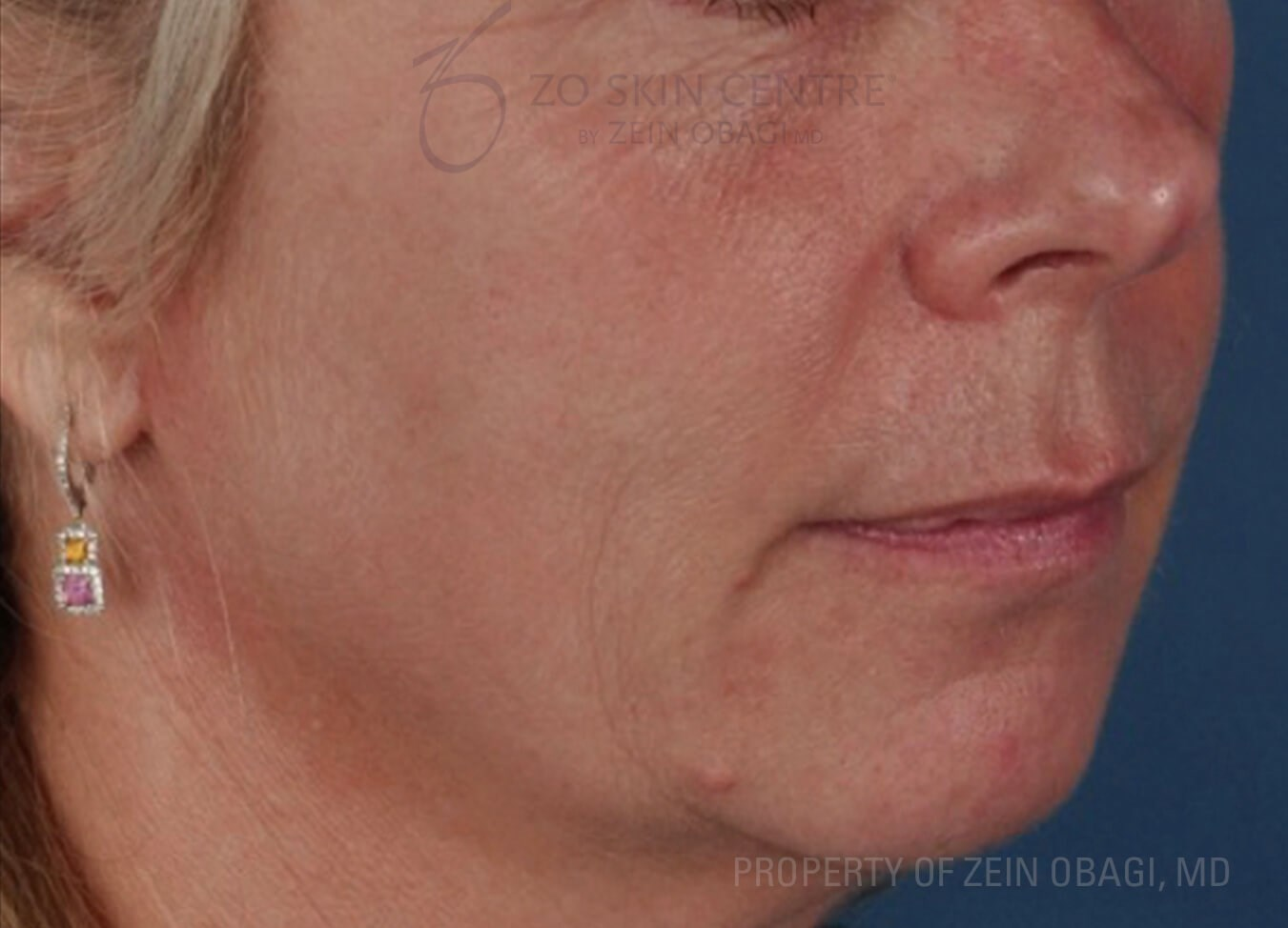 Photoaging and Skin Laxity Before Peel + Laser Treatment