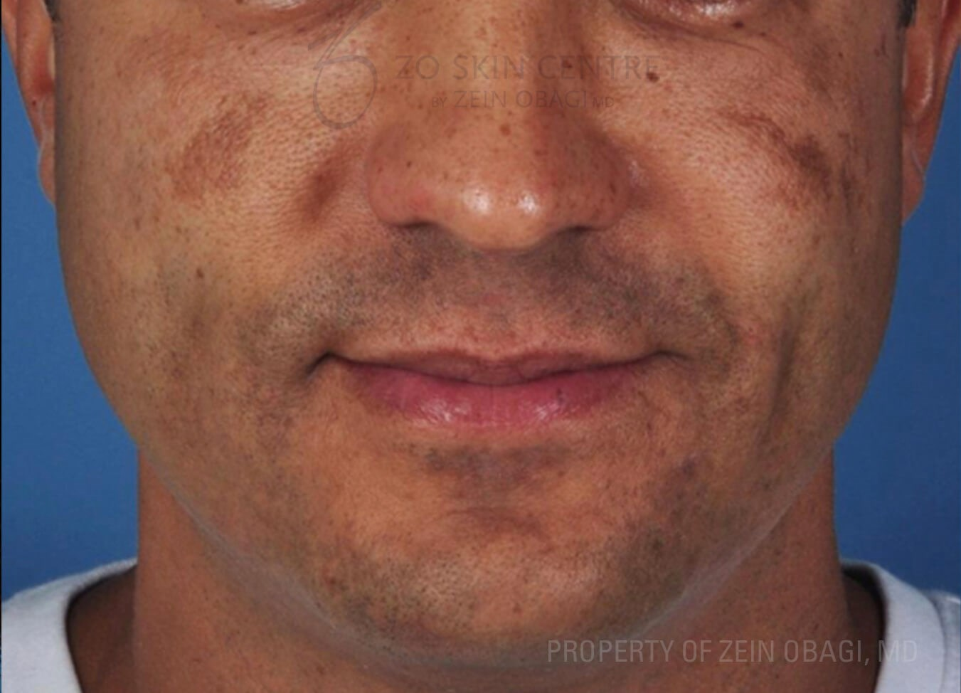 Melasma Before ZO® 3-Step Peel™