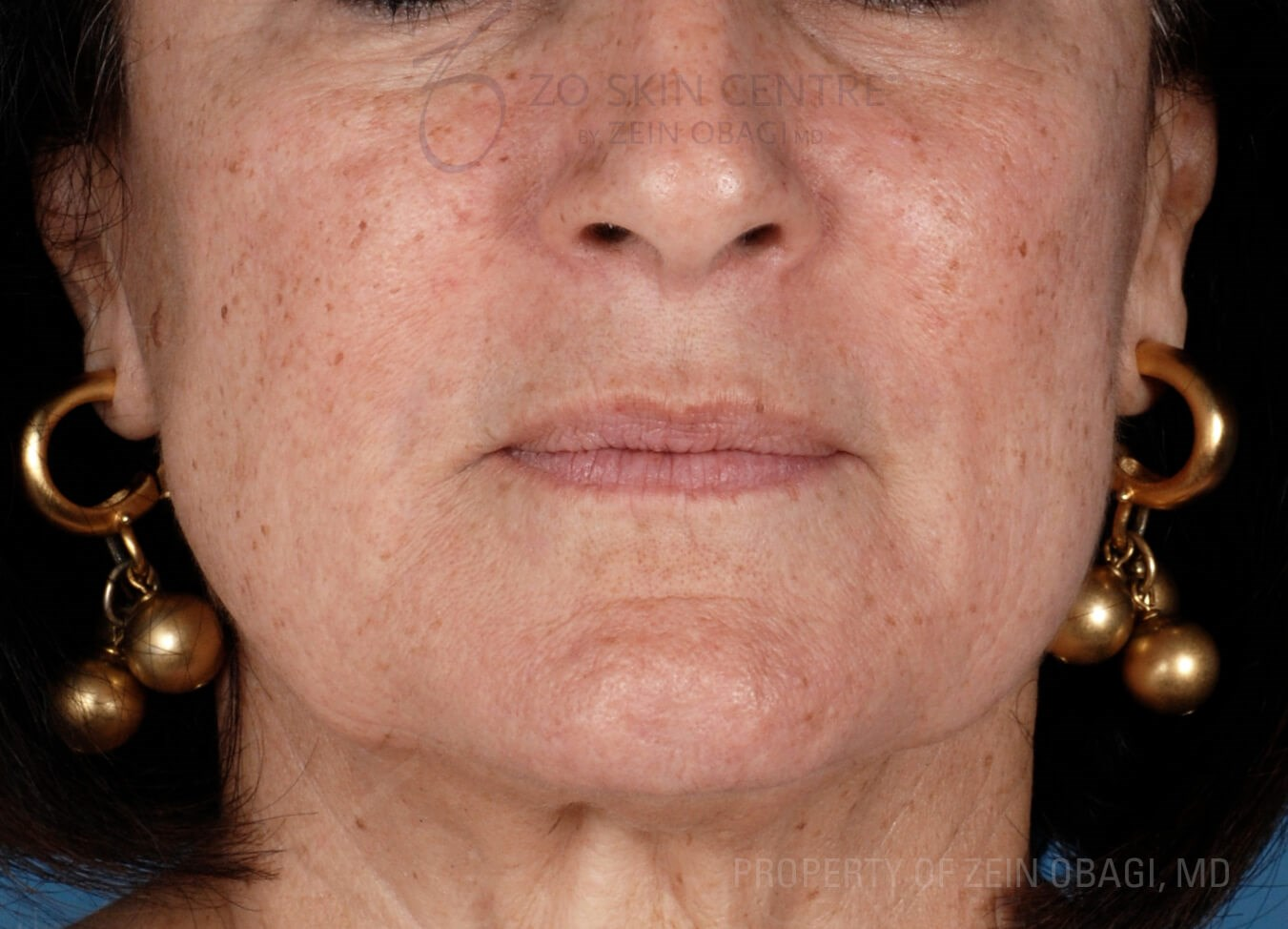 Skin Health Rejuvenation Before Customized Treatment