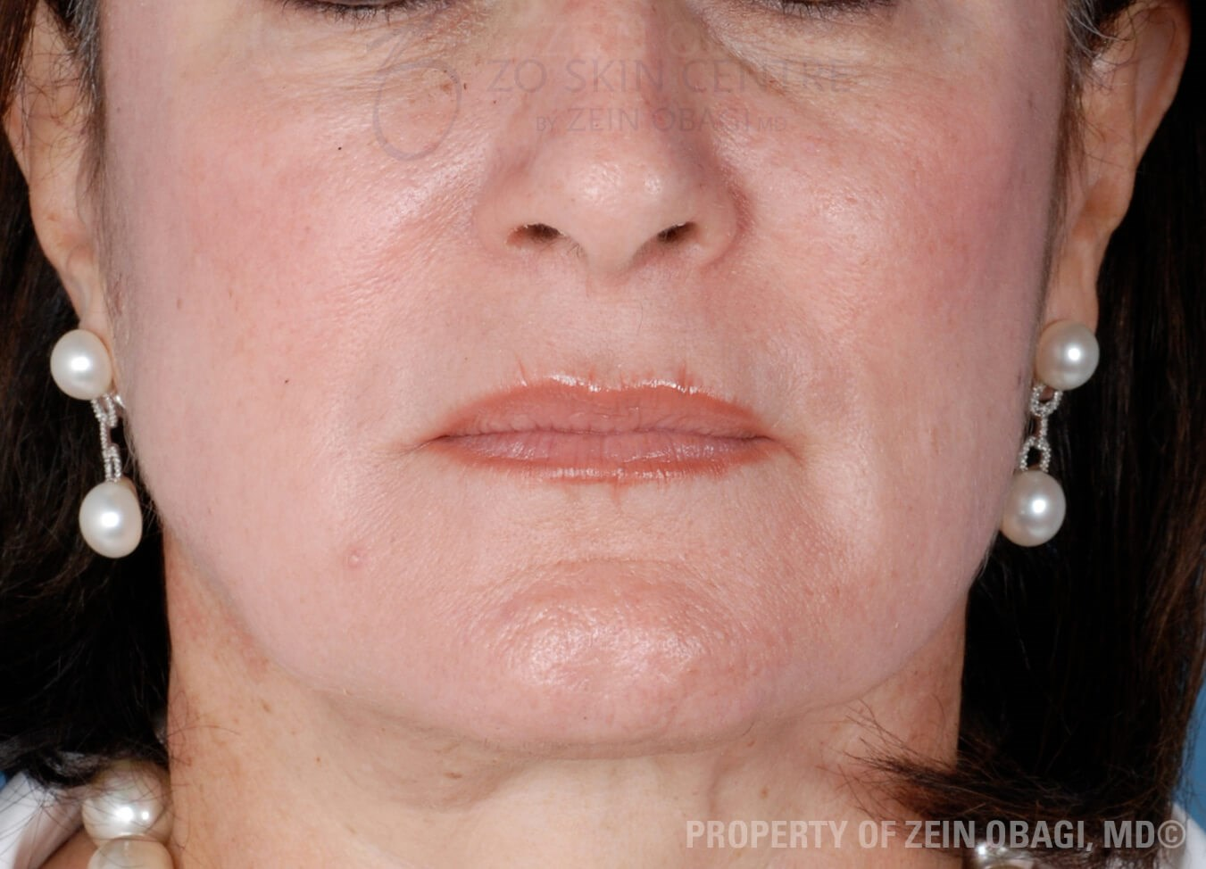 Skin Health Rejuvenation After Customized Treatment