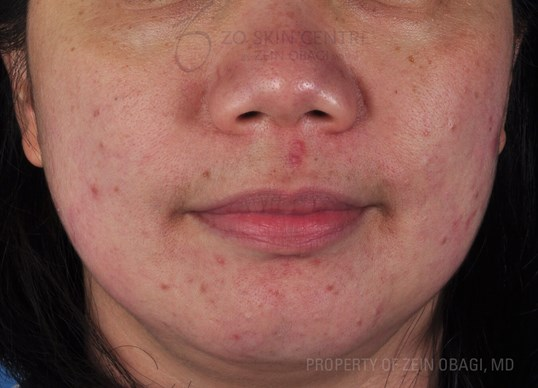 PIH & Cystic Acne Before Customized Treatment