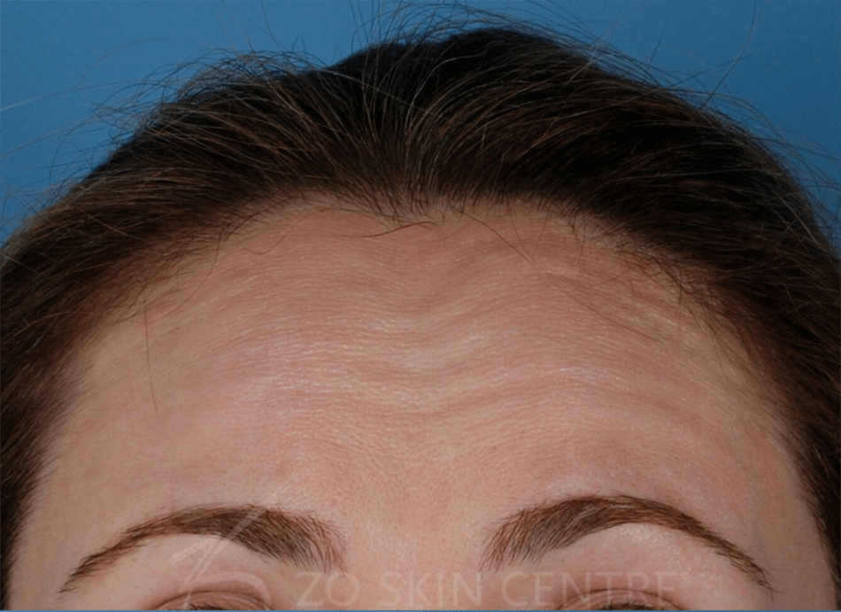BOTOX - Forehead Before BOTOX®