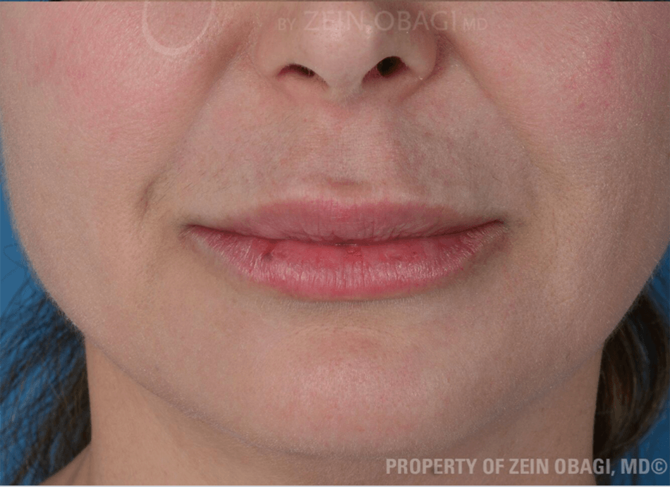 BOTOX® - Chin After BOTOX® Injections