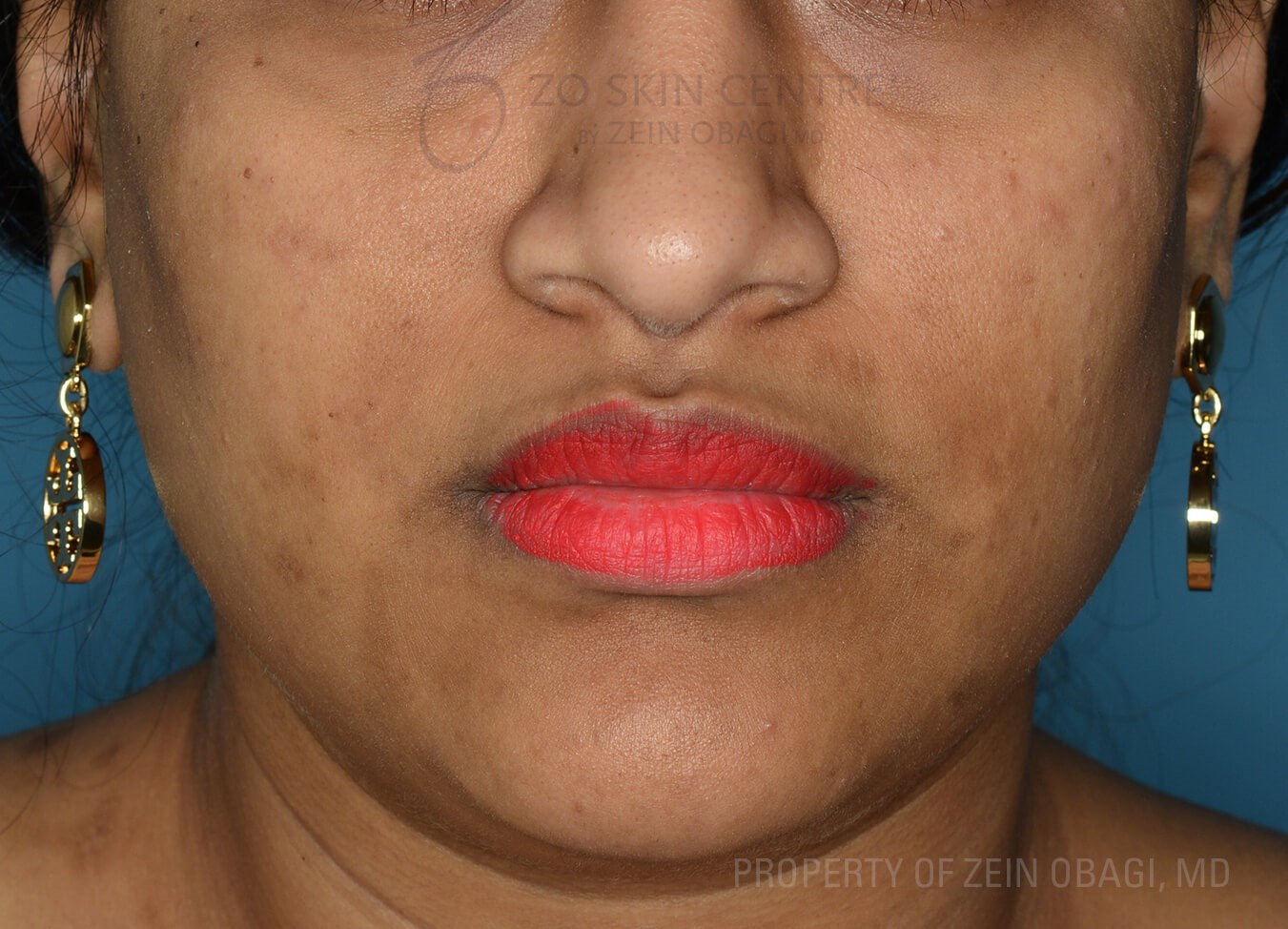 Front View Before Customized Treatment