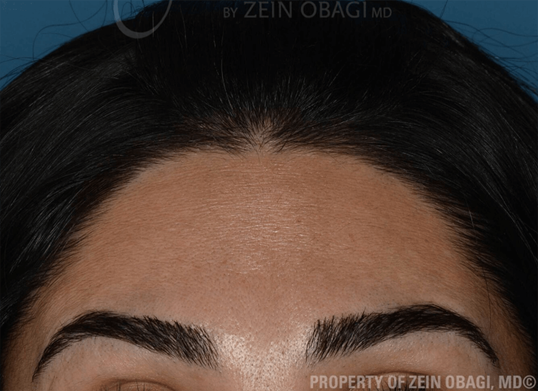 BOTOX - Forehead After BOTOX® Injections