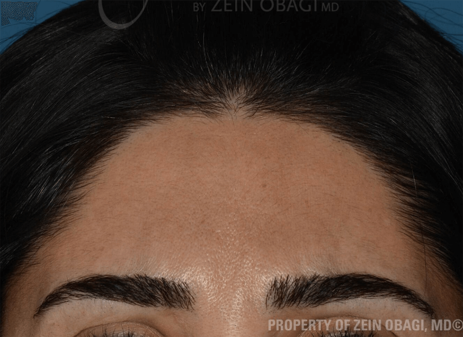 BOTOX® - Glabella Wrinkles After BOTOX® Injections