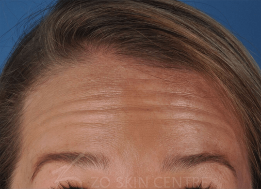 BOTOX®  - Forehead Before BOTOX®