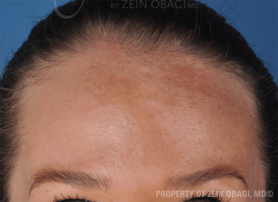 BOTOX®  - Forehead After BOTOX® Injections