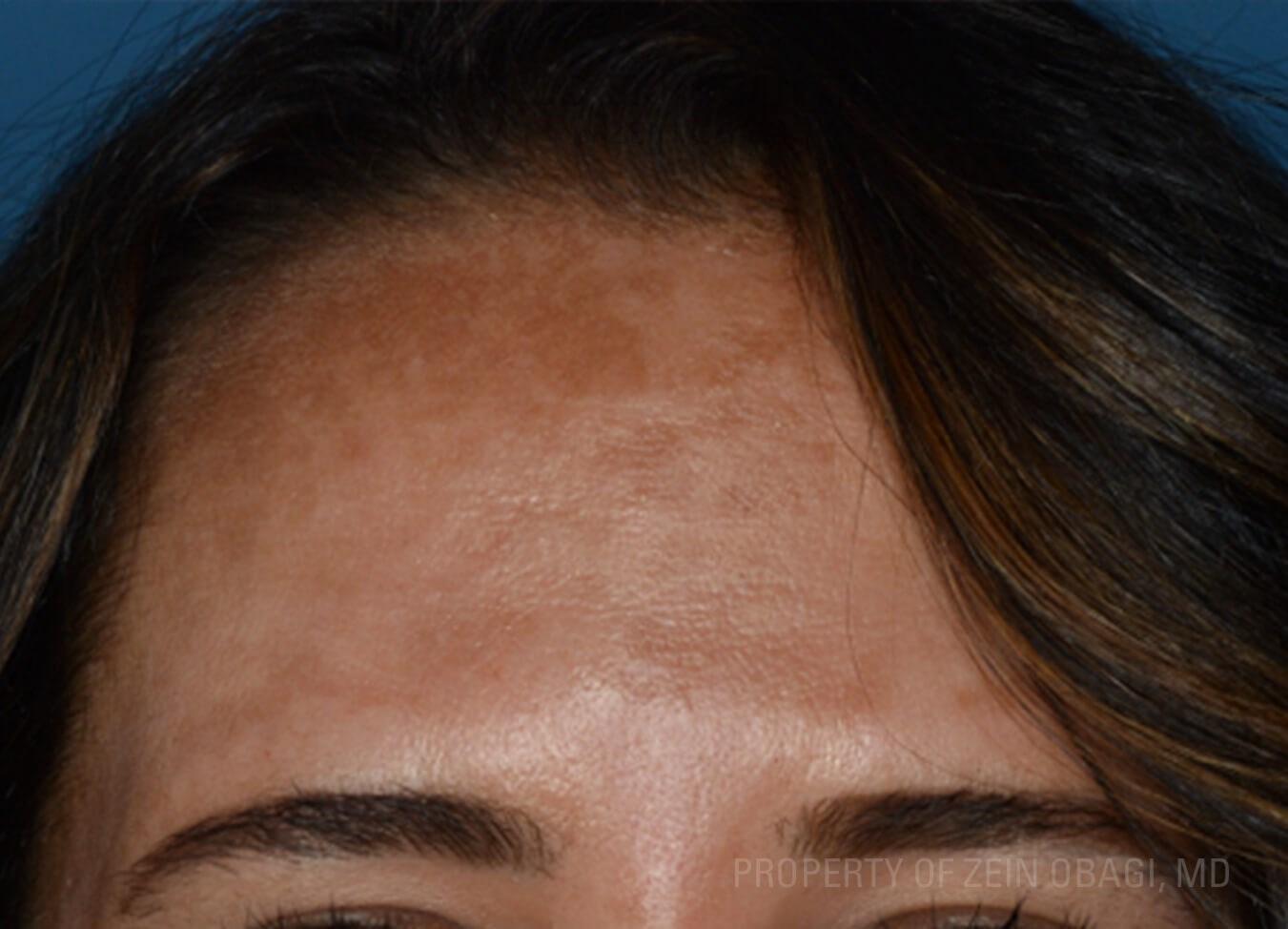 Front View - Forehead Before Peel + Laser Treatment