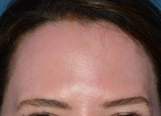 Front View - Forehead After Peel + Laser Treatment