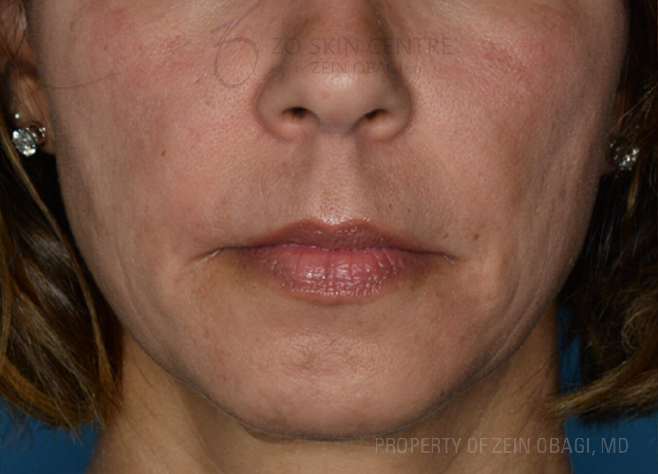 Front View - Cheek and Chin Before Customized Treatment
