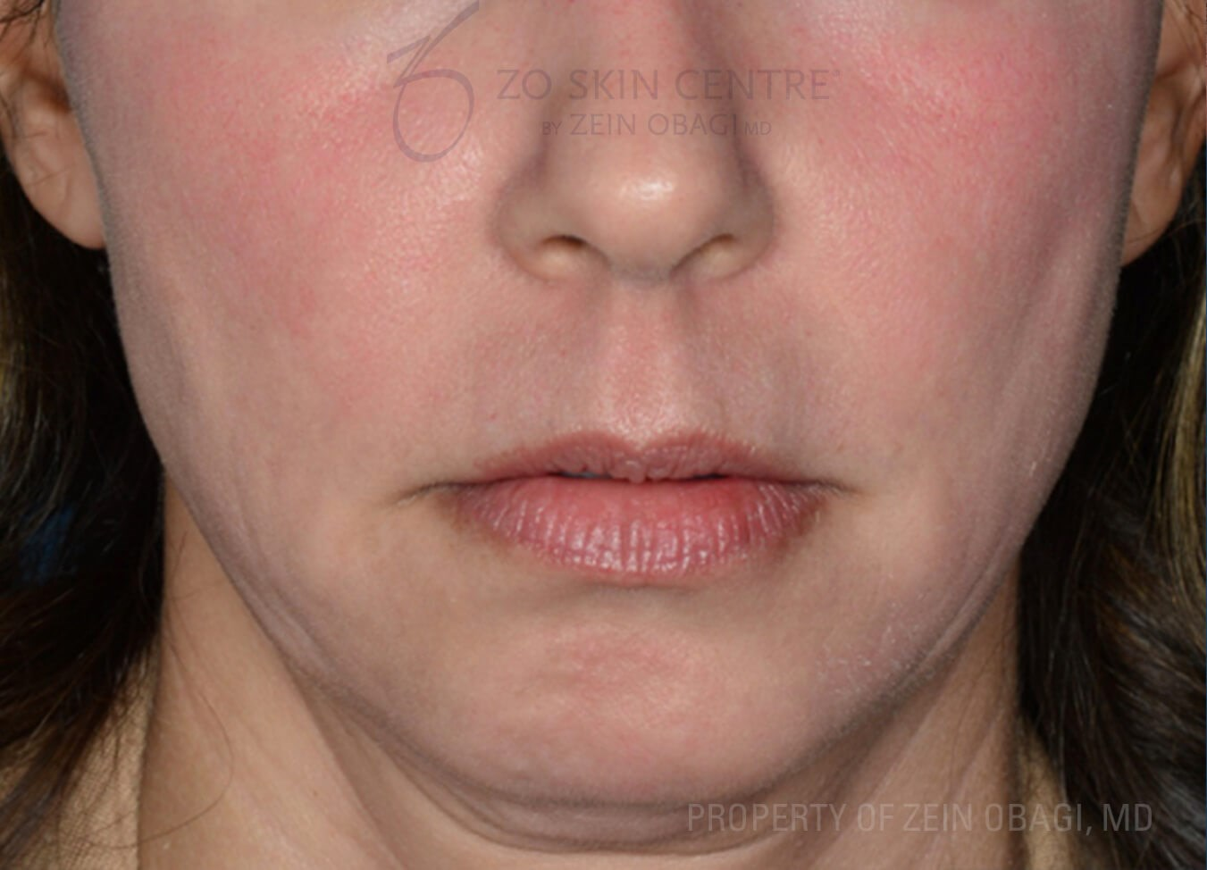 Front View - Cheek and Chin After Customized Treatment