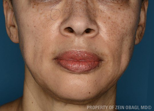 Front View After ZO® 3-Step Peel™