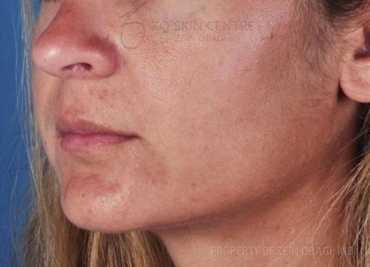 Microneedling + PRP results for female in Beverly Hills, CA