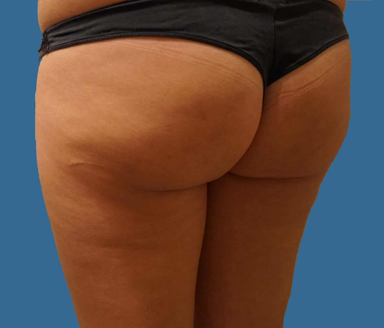 Cellfina® - Back View After Cellfina® Procedure