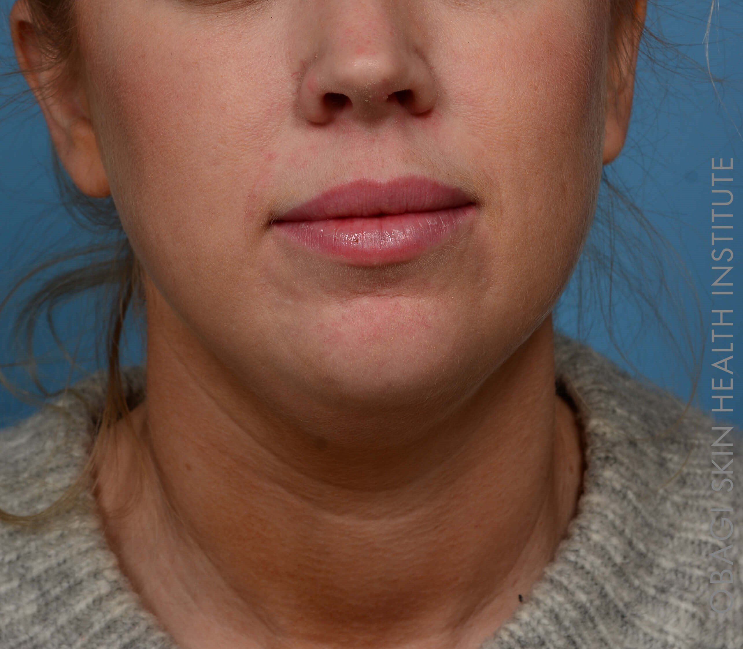 Kybella + Voluma - Front View After Kybella + Voluma Chin