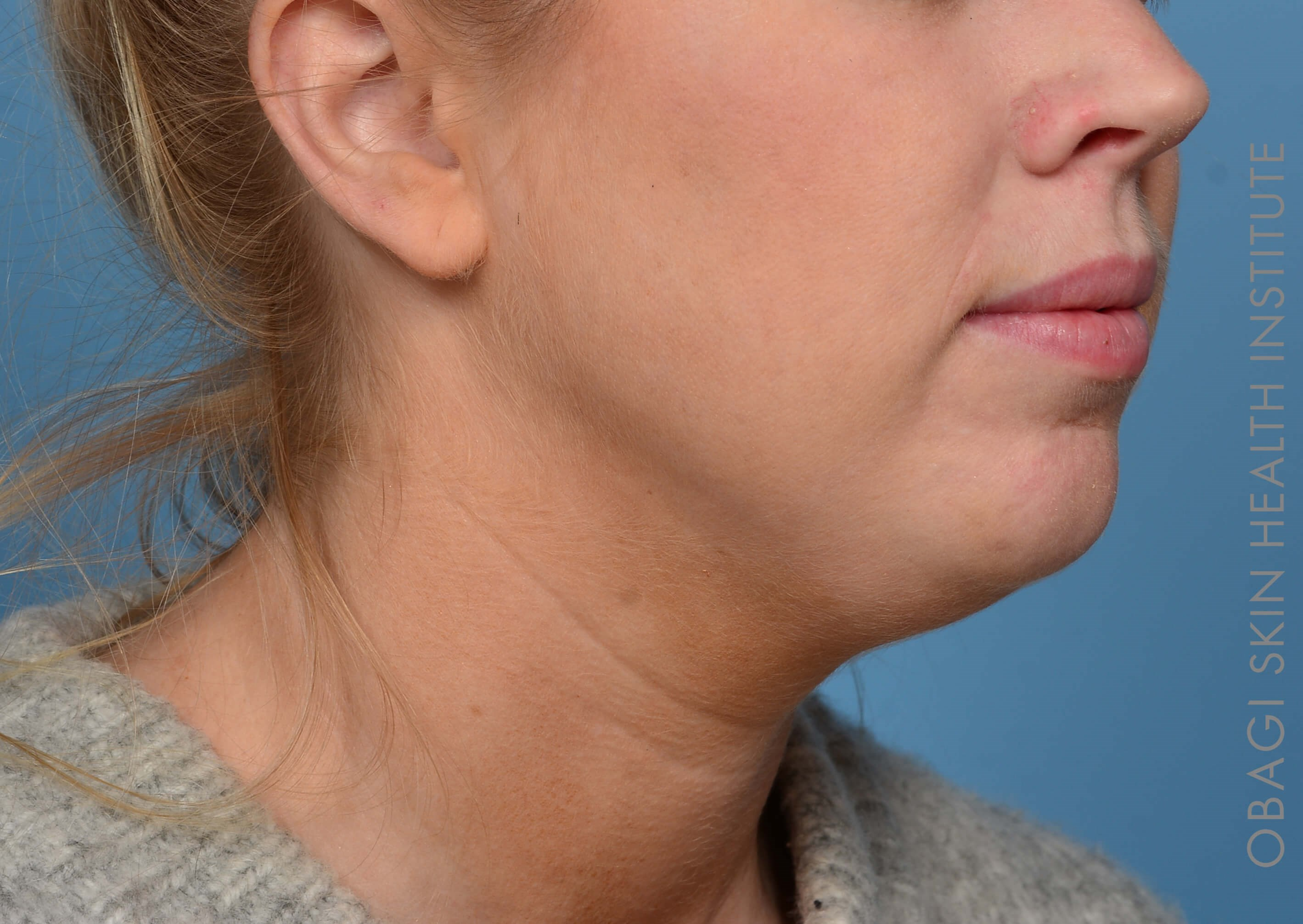 Kybella + Voluma - Right View After Kybella + Voluma Chin